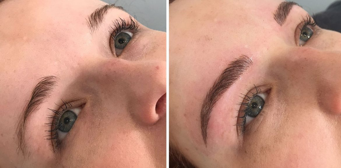 Does Microblading Cause Swelling?