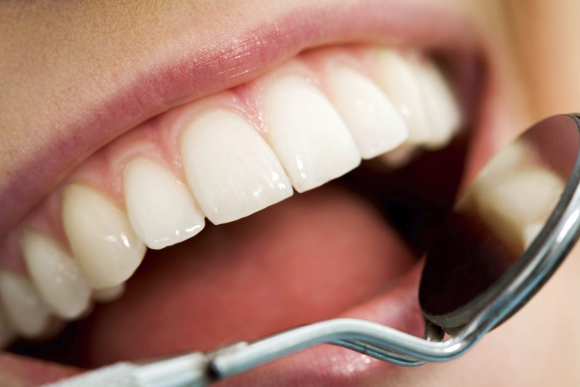 Questions to Ask Before Going For Teeth Whitening