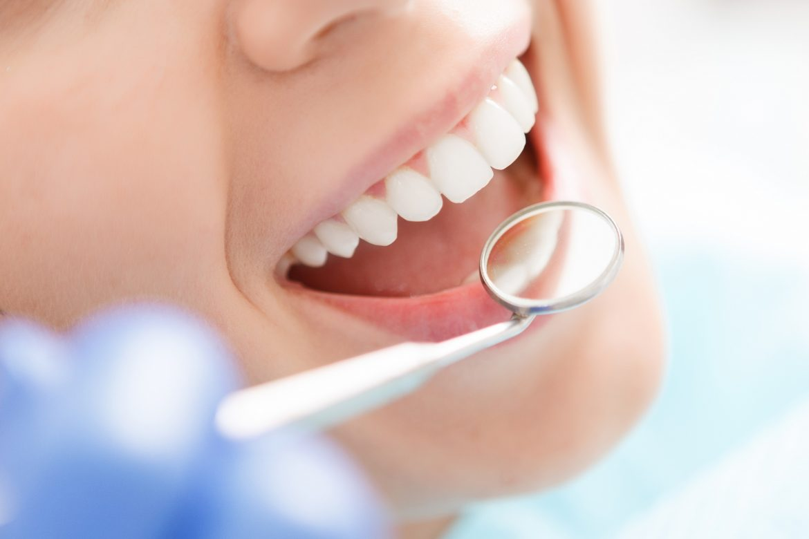 The Importance of Teeth Whitening For Smokers